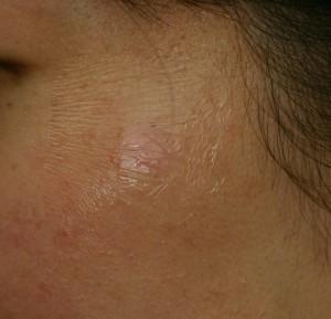 taped skin