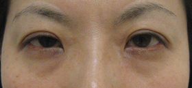 lower eyelid beforephotos