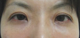 lower eyelid afterphoto