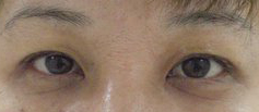 ptosis afterphoto