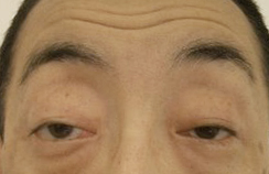 ptosis2before
