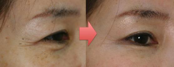 mejiribotox-case1-vivencia-clinic